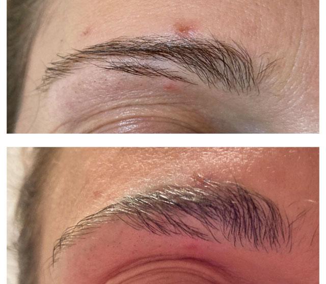 lamination sourcil brow lift