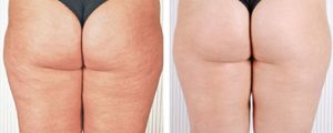 lumicell wave cellulite